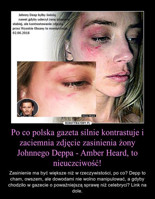 Po co polska gazeta silnie kontrastuje i zaciemnia zdjęcie zasinienia żony Johnnego Deppa - Amber Heard, to nieuczciwość!