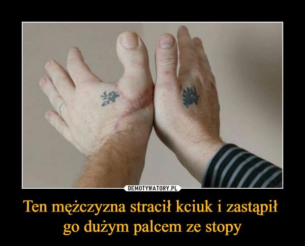 Ten mężczyzna stracił kciuk i zastąpił go dużym palcem ze stopy –