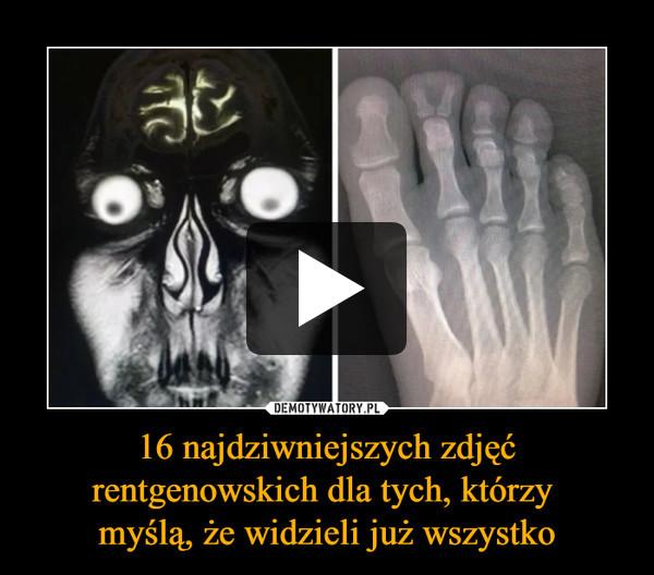 16 najdziwniejszych zdjęć rentgenowskich dla tych, którzy myślą, że widzieli już wszystko –