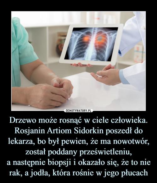Drzewo może rosnąć w ciele człowieka. Rosjanin Artiom Sidorkin poszedł do lekarza, bo był pewien, że ma nowotwór, został poddany prześwietleniu, a następnie biopsji i okazało się, że to nie rak, a jodła, która rośnie w jego płucach