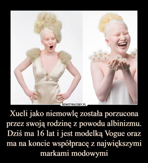 Xueli jako niemowlę została porzucona przez swoją rodzinę z powodu albinizmu. Dziś ma 16 lat i jest modelką Vogue oraz ma na koncie współpracę z największymi markami modowymi –